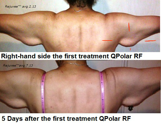 Right side after first treatment Q-Polar RF