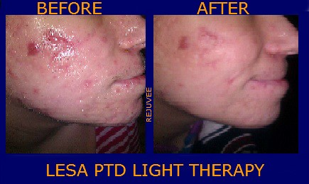 HOW DOES PHOTO DYNAMIC THERAPY WORK IN ACNE CLIENTS ?