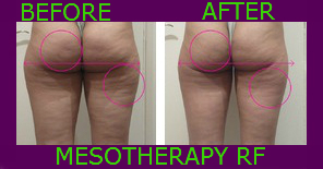 Mesotherapy RF Cellular Remuval