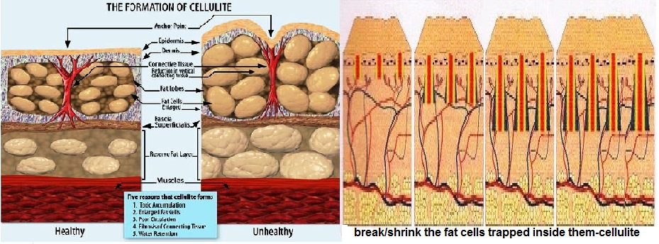 Formation_of_Cellulite 1