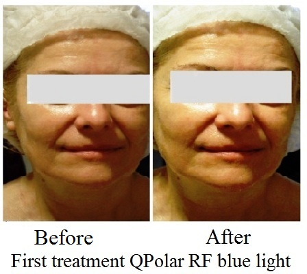 Qpolar RF face after the first treatment