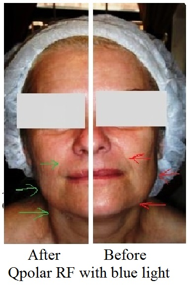 posle 10 minuta razlika na levoj strani posle tretmana